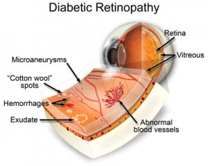 Diabetic Retinopathy Macroom