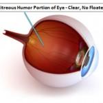 vitreous humor Clear