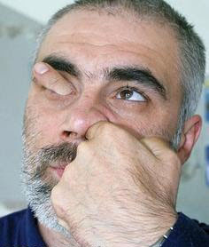 itchy nose